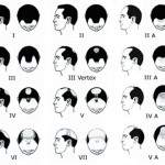 The Norwood Scale for hair loss for men