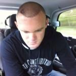 Wayne Rooney showing his hair transplant in 2011